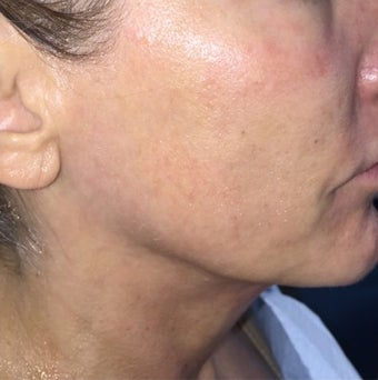 55-64 year old woman treated with Ultherapy before 3332644