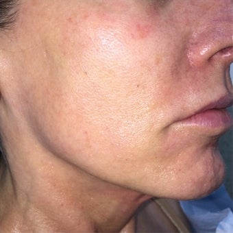 55-64 year old woman treated with Ultherapy after 3332644