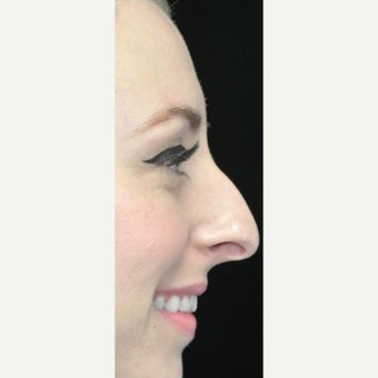 Scarless Closed Rhinoplasty before 3586211