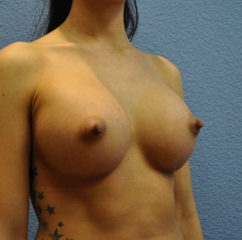Breast Augmentation, Breast Implants 1205571