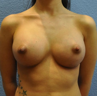 Breast Augmentation, Breast Implants after 1205571