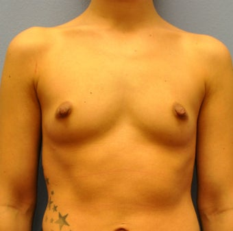 Breast Augmentation, Breast Implants before 1205571