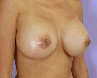 Breast Augmentation after 281407