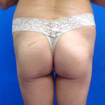 35-44 year old woman treated with Brazilian Butt Lift before 3175533