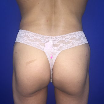 35-44 year old woman treated with Brazilian Butt Lift after 3175533