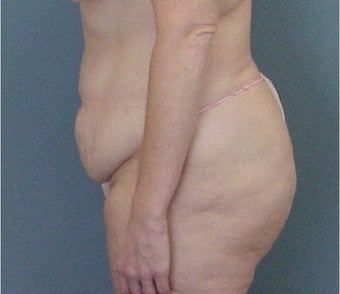 35-44 year old woman treated with Tummy Tuck before 3289657