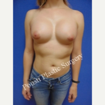 35-44 year old woman treated with Breast Implants after 3424047