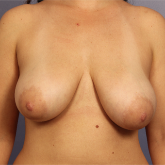 25-34 year old woman treated with Breast Lift before 3671672