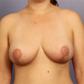 25-34 year old woman treated with Breast Lift after 3671672