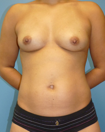 Breast Fat Transfer before 1579674