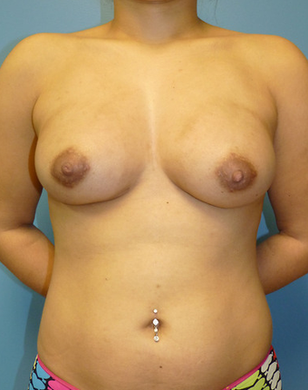 Breast Fat Transfer after 1579674