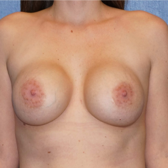 30 year old women removed her saline implants - breast implant removal before 2722288