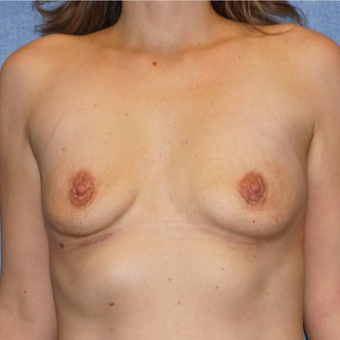 30 year old women removed her saline implants - breast implant removal after 2722288