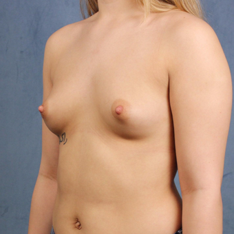 19 year old breast augmentation with silicone gel breast implants and long-term followup. before 3005320