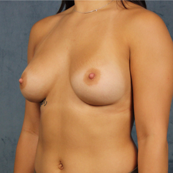 19 year old breast augmentation with silicone gel breast implants and long-term followup. after 3005320