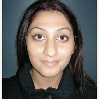 18-24 year old woman treated with Rhinoplasty before 3686946