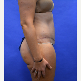 35-44 year old woman treated with Tummy Tuck after 3580086