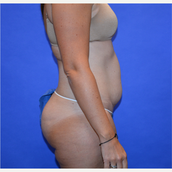 35-44 year old woman treated with Tummy Tuck before 3580086