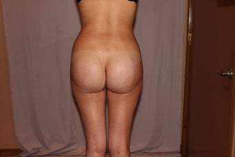 Brazilian Butt Lift/Butt Augmentation 410561