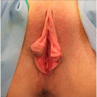 25-34 year old woman treated with Vaginal Rejuvenation before 2121737