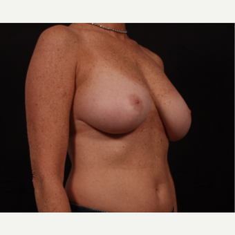 45-54 year old woman treated with Breast Reconstruction before 3668999