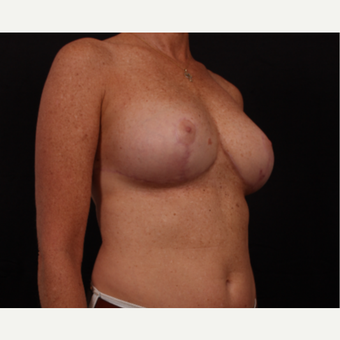 45-54 year old woman treated with Breast Reconstruction after 3668999