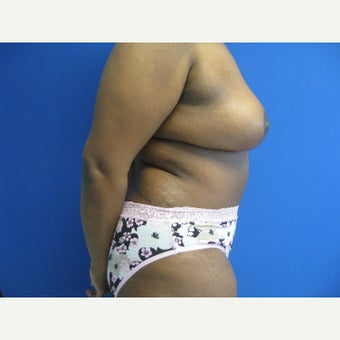44 year old woman treated with Mommy Makeover 1665730