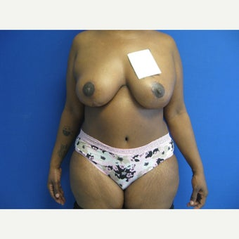 44 year old woman treated with Mommy Makeover