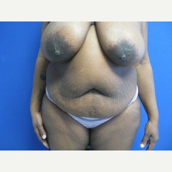 44 year old woman treated with Mommy Makeover before 1665730
