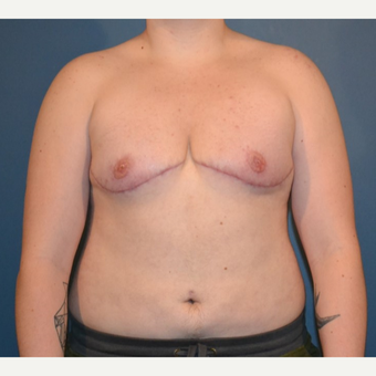 25-34 year old man treated with FTM Chest Masculinization Surgery after 3132043