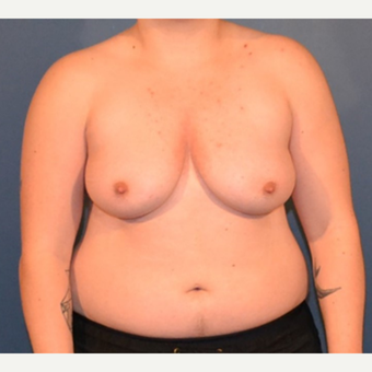 25-34 year old man treated with FTM Chest Masculinization Surgery before 3132043