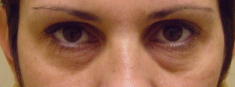 Perlane Treatment Under the Eyes before 1468171