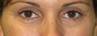 Perlane Treatment Under the Eyes after 1468171