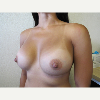 35-44 year old woman treated with Mentor Breast Implants after 3412002