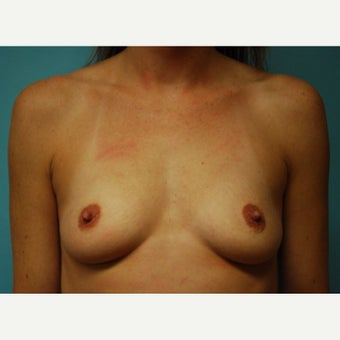25-34 year old woman treated with breast implants before 2517024