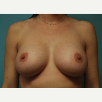 25-34 year old woman treated with breast implants after 2517024