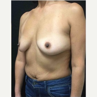 45-54 year old woman treated with Breast Implants before 3103479