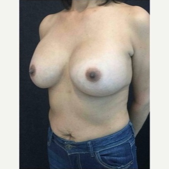 45-54 year old woman treated with Breast Implants after 3103479