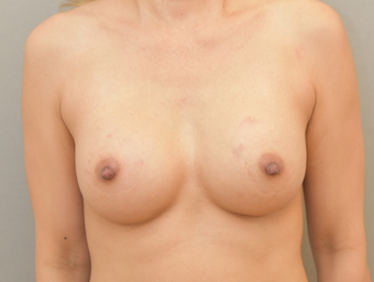 38 year old woman treated with Breast Implants