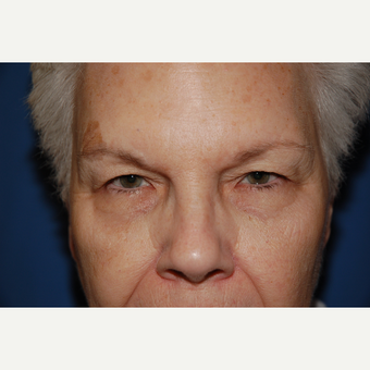 55-64 year old woman treated with Eyelid Surgery before 3782069