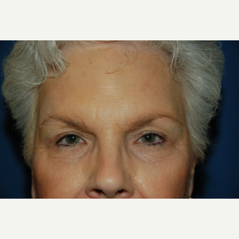 55-64 year old woman treated with Eyelid Surgery after 3782069