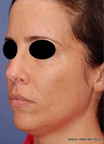 25-34 year old woman treated with Rhinoplasty before 3624180