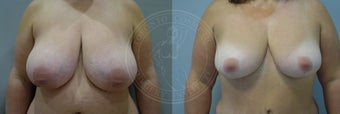 45-54 year old woman treated with Breast Reduction before 2284204