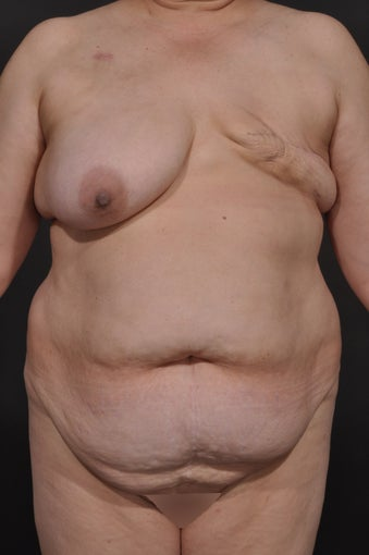 Breast Reconstruction before 927733