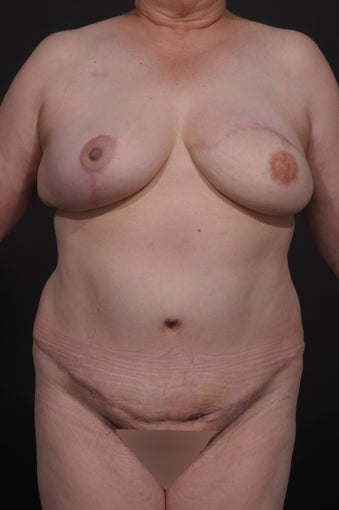 Breast Reconstruction after 927733