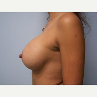35-44 year old woman treated with Breast Augmentation- 450cc silicone 1656343