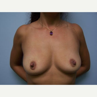 35-44 year old woman treated with Breast Augmentation- 450cc silicone before 1656343