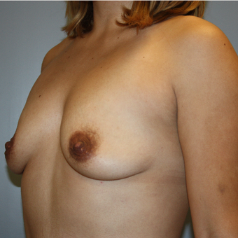 25-34 year old woman treated with Breast Augmentation before 3808874