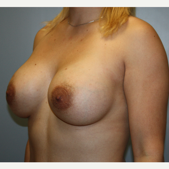 25-34 year old woman treated with Breast Augmentation after 3808874