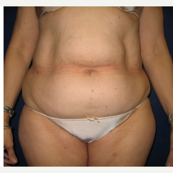 35-44 year old woman treated with Tummy Tuck before 3414918